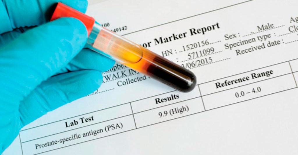 sangrado de próstata icd 100