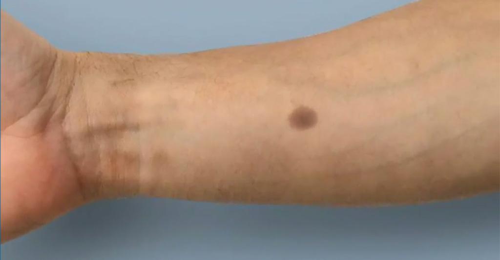 tatuaje de tumor de próstata en etapas